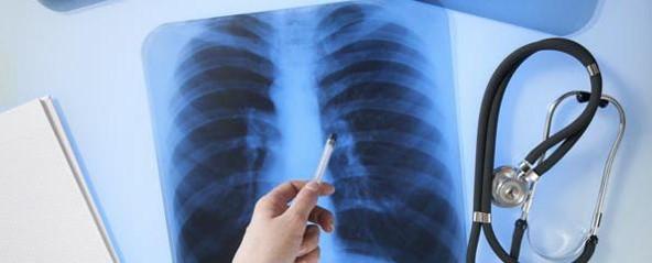 туберкульозРисунок1